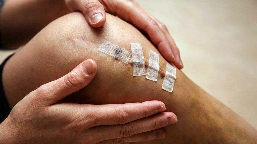 Science: почему травмы колена зачастую не заживают? - 1