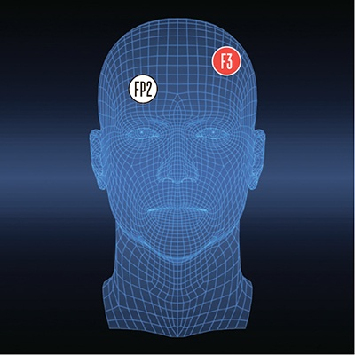 Биохакинг мозга: куда располагать электроды, чтобы стать умнее? - 10