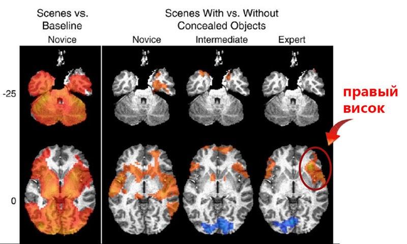 Биохакинг мозга: куда располагать электроды, чтобы стать умнее? - 4