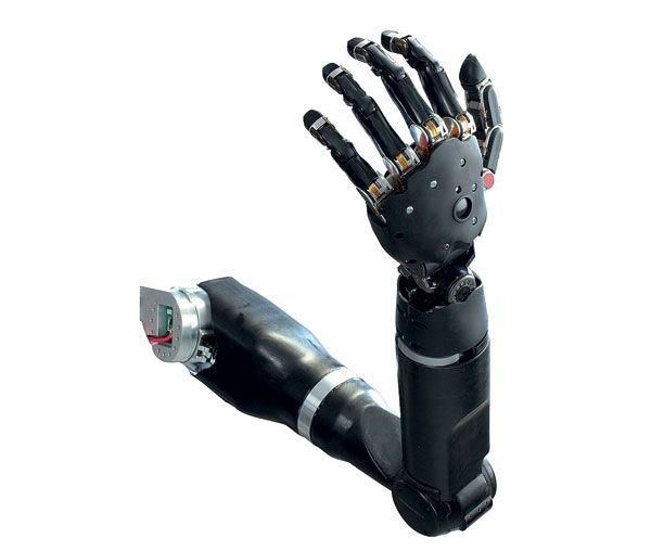 Потерявшая руку женщина получила один из самых совершенных бионических протезов в мире - 1
