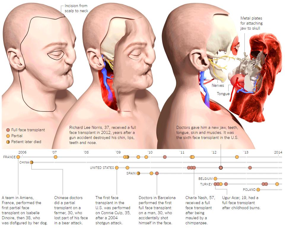 Умерла первая женщина, которой частично пересадили лицо - 4