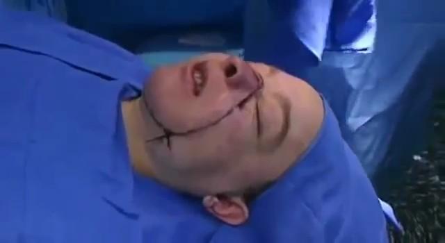 Умерла первая женщина, которой частично пересадили лицо - 7