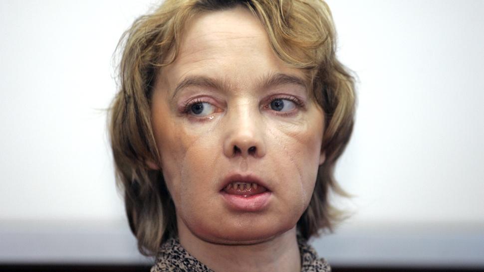 Умерла первая женщина, которой частично пересадили лицо - 1