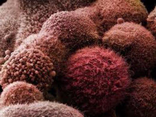 Ученые нашли объяснение тому, что рак поражает определенные органы