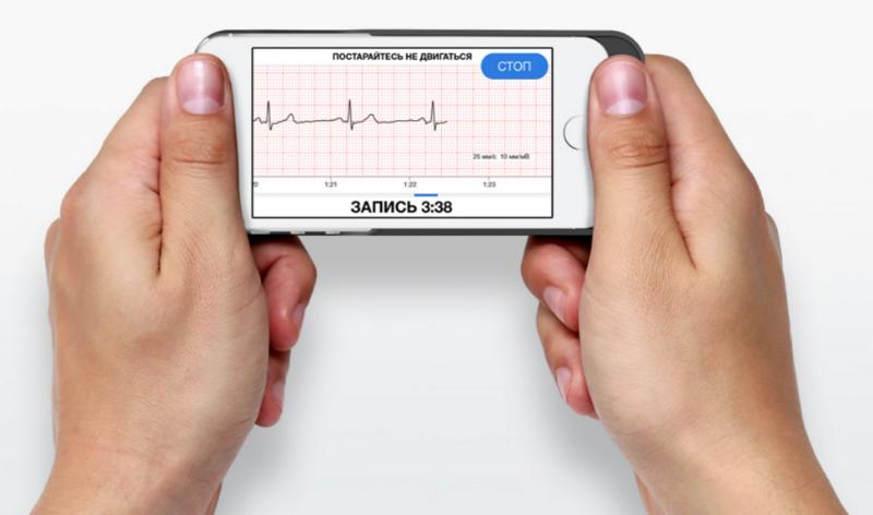 Эволюция кардиографов: от комнат с солевыми ваннами к чехлам для iPhone - 8