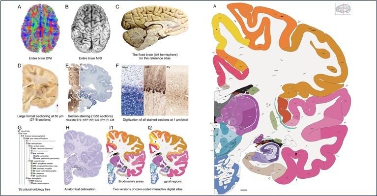 Впервые составлен полный атлас человеческого мозга с клеточным разрешением 1 мкм-пиксель - 2
