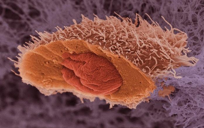 Нобелевскую премию по физиологии и медицине присудили за исследование «самопоедания» клеток - 1