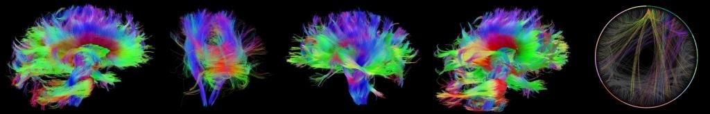 Структура и стартовые настройки мозга - 10