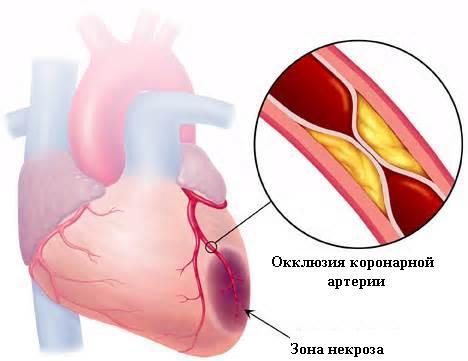 Стволовые клетки позволяют приводить в порядок больное сердце обезьян - 2