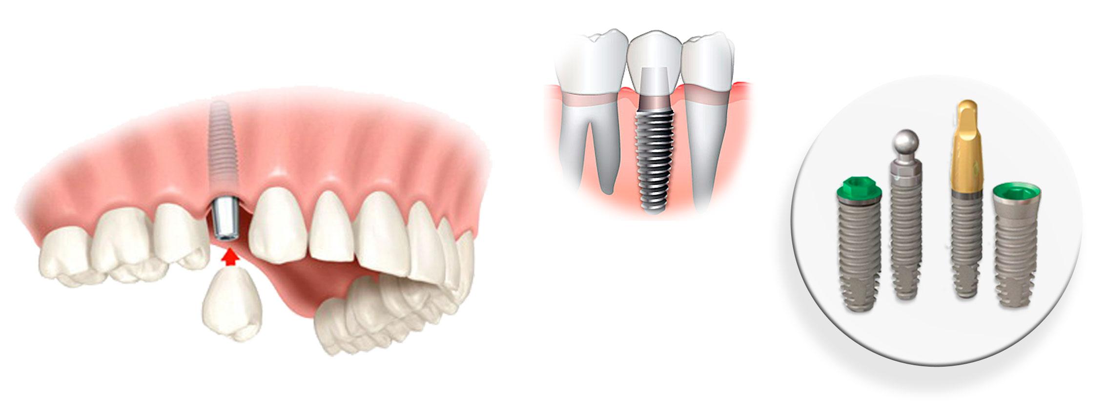 Ученые выяснили, какие лекарства не стоит пить перед имплантацией зубов - 3