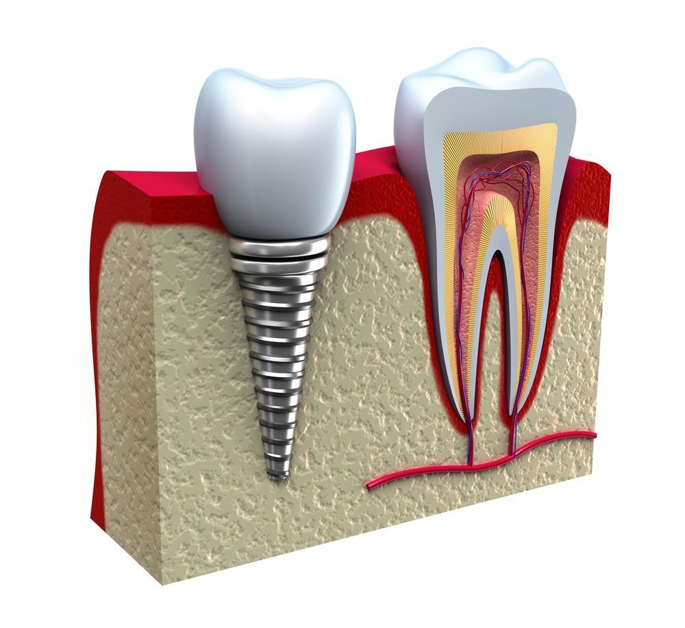 Ученые выяснили, какие лекарства не стоит пить перед имплантацией зубов - 1