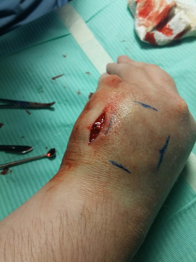 Мой опыт биохакинга. Часть 1: RFID - 13