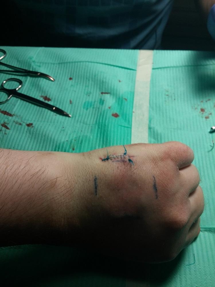 Мой опыт биохакинга. Часть 1: RFID - 14