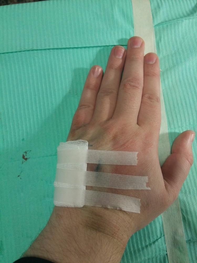 Мой опыт биохакинга. Часть 1: RFID - 15