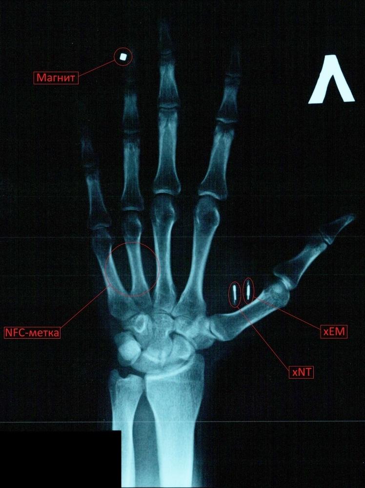 Мой опыт биохакинга. Часть 1: RFID - 2