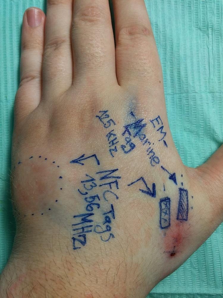 Мой опыт биохакинга. Часть 1: RFID - 3