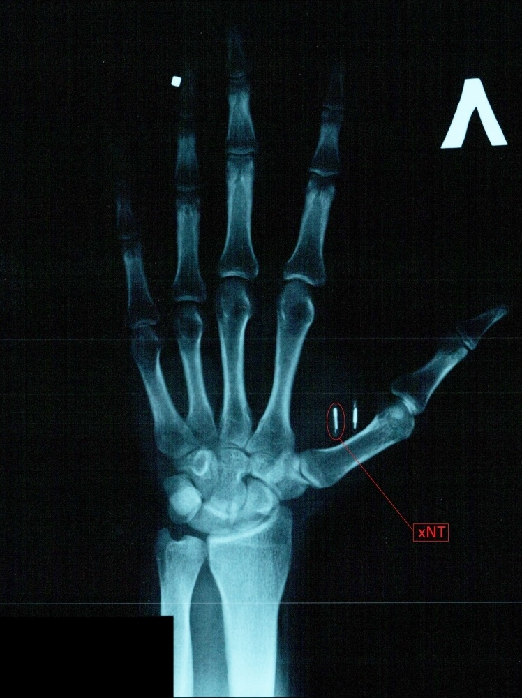 Мой опыт биохакинга. Часть 1: RFID - 5