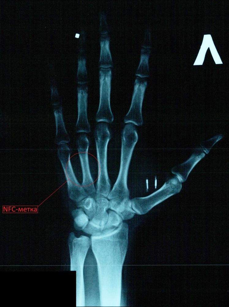 Мой опыт биохакинга. Часть 1: RFID - 7