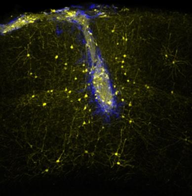 Стволовые клетки могут успешно заменить умершие клетки мозга - 2