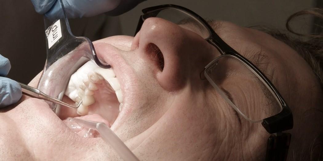 3D-печать в стоматологии на примере NextDent - 10