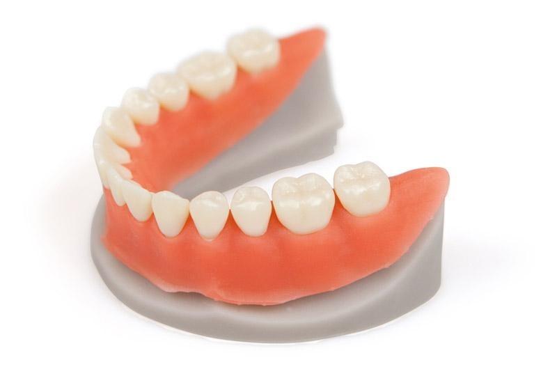 3D-печать в стоматологии на примере NextDent - 24
