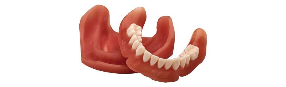 3D-печать в стоматологии на примере NextDent - 3