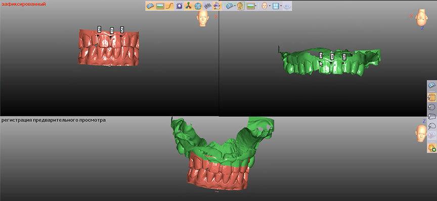 Применение 3D-технологий в стоматологии - 10