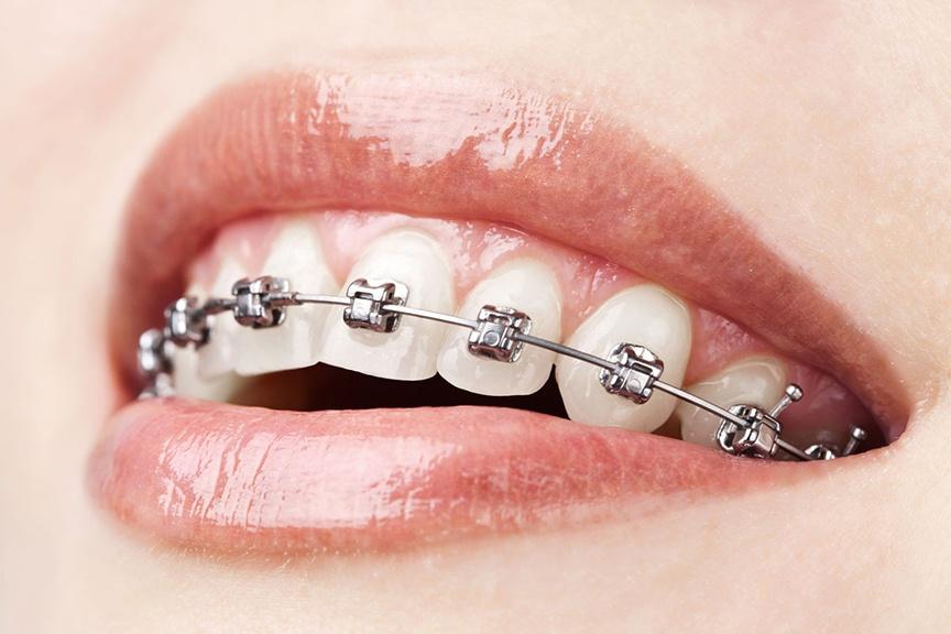 Применение 3D-технологий в стоматологии - 11