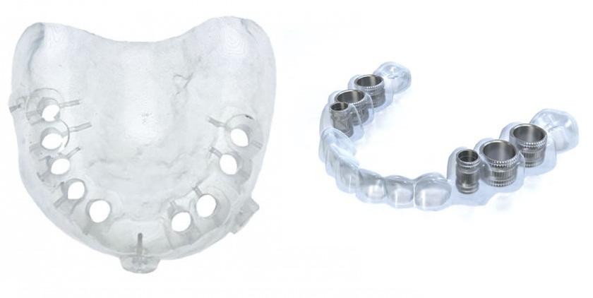 Применение 3D-технологий в стоматологии - 12
