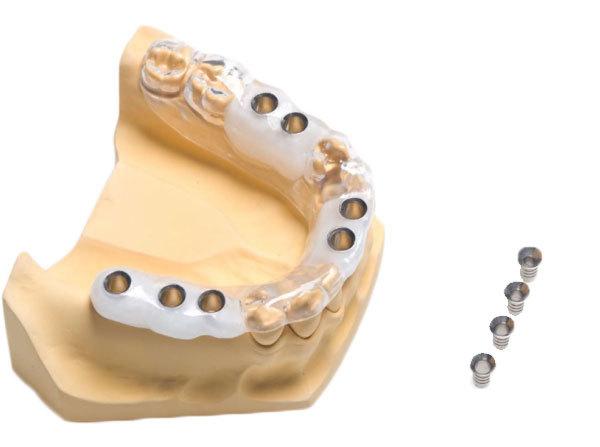 Применение 3D-технологий в стоматологии - 13