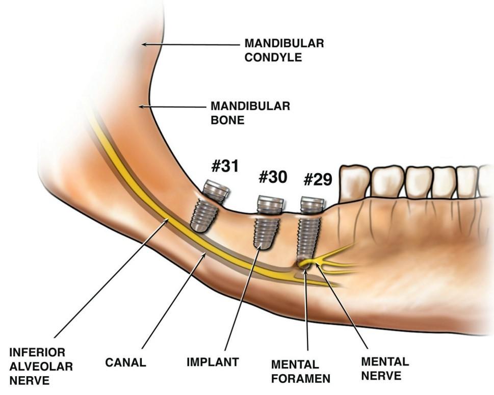 Применение 3D-технологий в стоматологии - 14