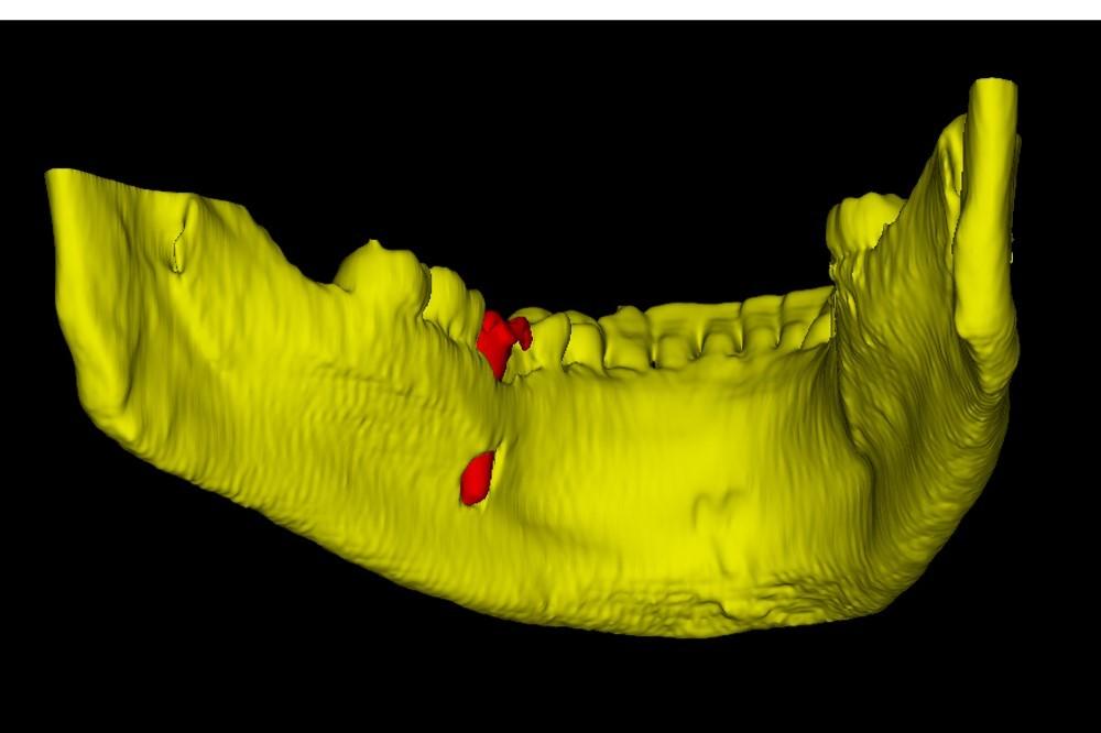 Применение 3D-технологий в стоматологии - 15