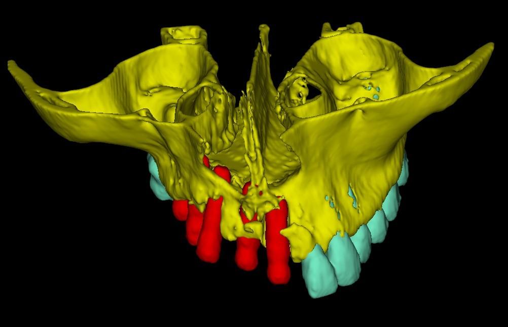 Применение 3D-технологий в стоматологии - 16