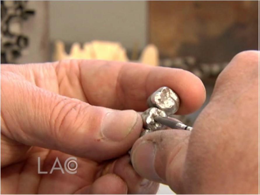 Применение 3D-технологий в стоматологии - 29