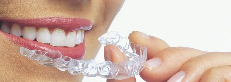 Применение 3D-технологий в стоматологии - 3