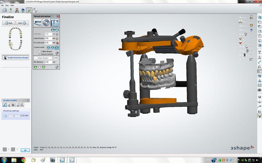 Применение 3D-технологий в стоматологии - 8