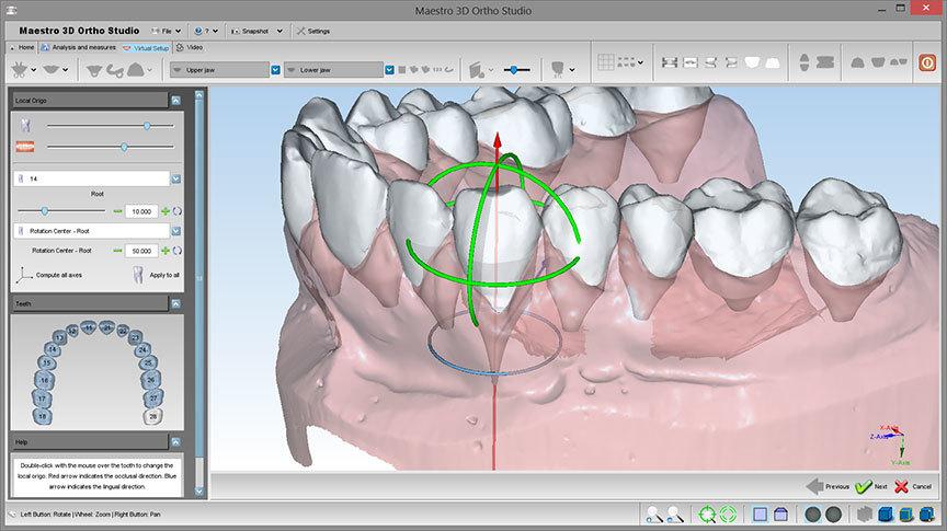 Применение 3D-технологий в стоматологии - 9