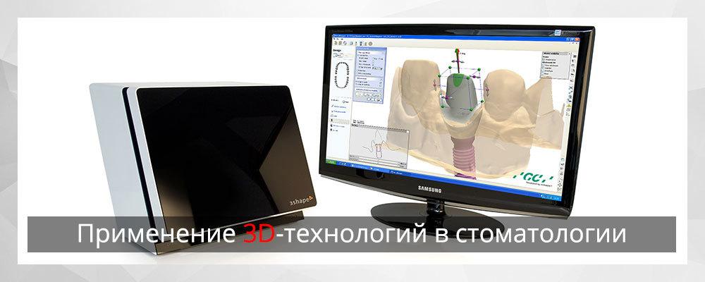 Применение 3D-технологий в стоматологии - 1