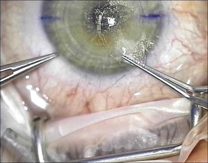Лазер, который режет внутри роговицы: процедура ReLEх на физическом уровне - 10