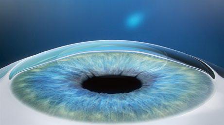 Лазер, который режет внутри роговицы: процедура ReLEх на физическом уровне - 4