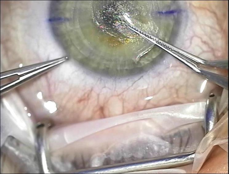 Лазер, который режет внутри роговицы: процедура ReLEх на физическом уровне - 9