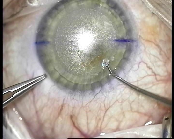 Телеметрия с лазера для коррекции зрения: полная операция с комментариями (не для слабонервных) - 15