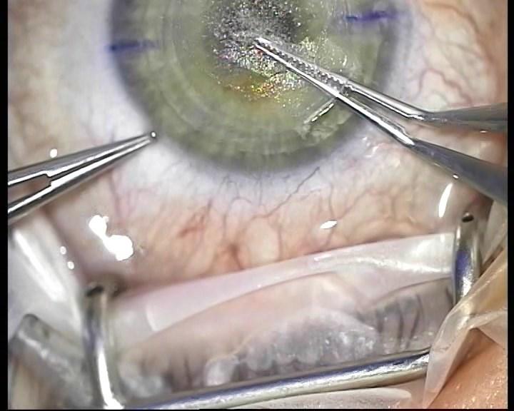 Телеметрия с лазера для коррекции зрения: полная операция с комментариями (не для слабонервных) - 17
