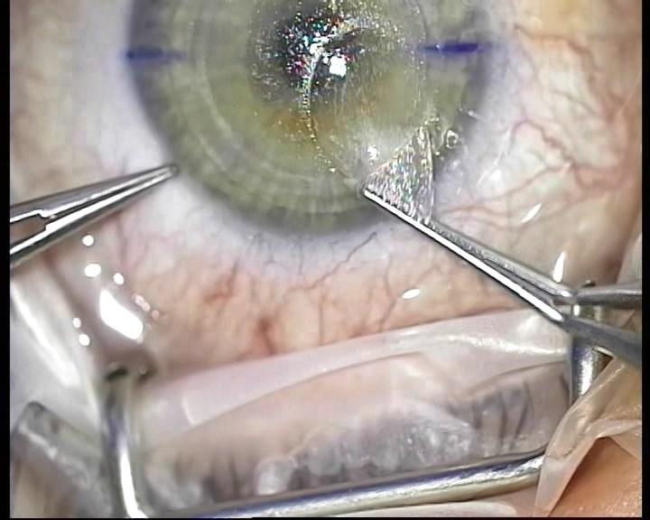 Телеметрия с лазера для коррекции зрения: полная операция с комментариями (не для слабонервных) - 18