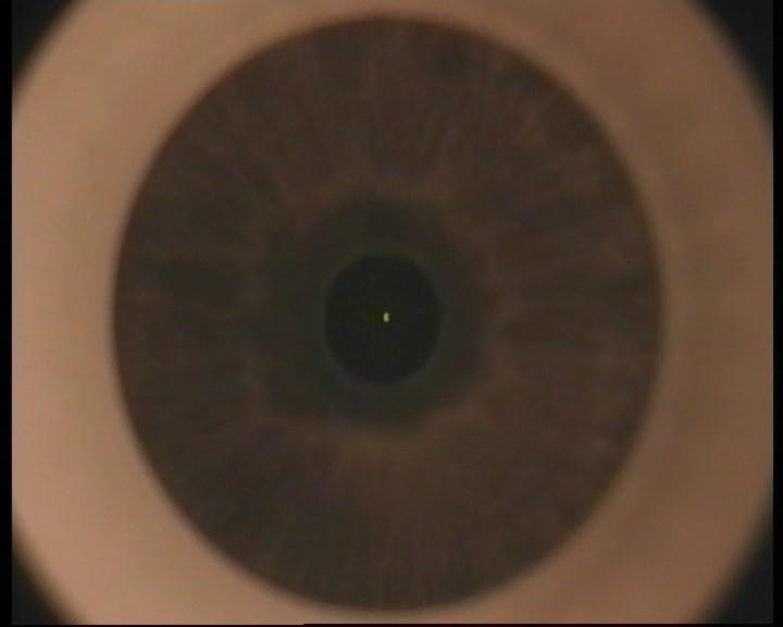 Телеметрия с лазера для коррекции зрения: полная операция с комментариями (не для слабонервных) - 8