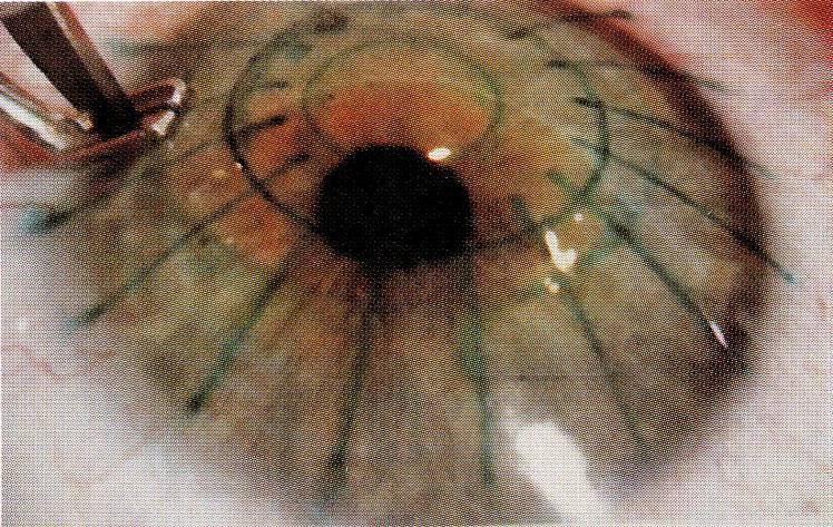 История операций по коррекции зрения: сравнение рисков и побочных эффектов - 2