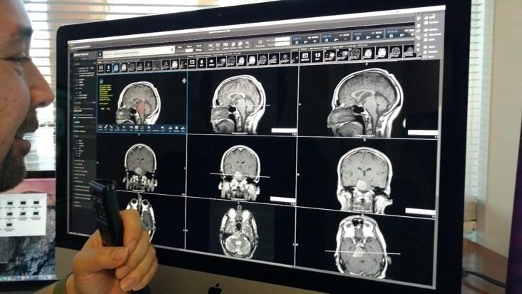 Когнитивная система IBM поможет врачам автоматизировать анализ медицинских снимков - 3