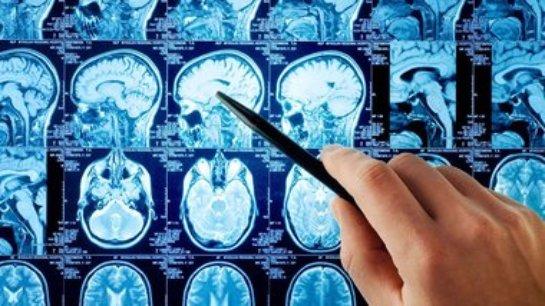 В головном мозге обнаружили не известный раннее тип иммунных клеток