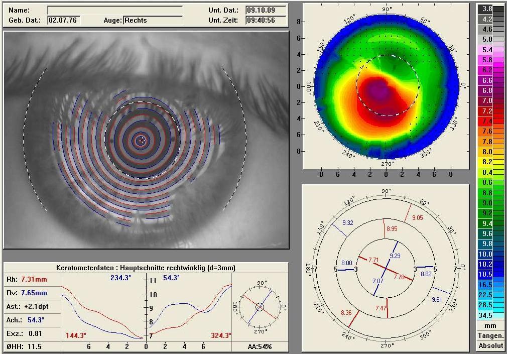 Мы добрались до побочных эффектов лазерной коррекции зрения — и ещё до диагностики - 1