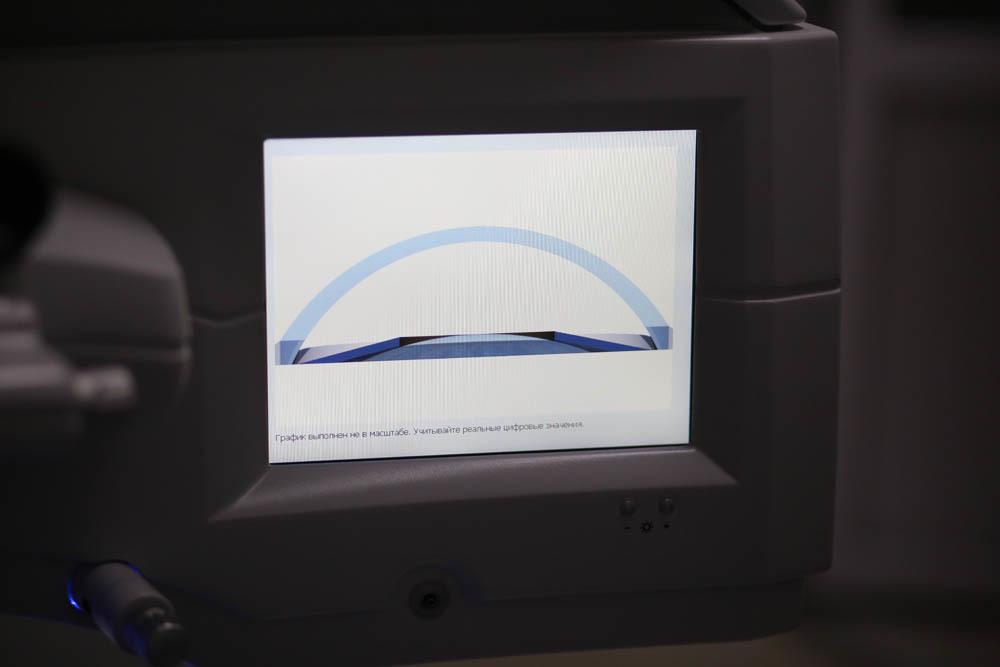 Оборудование операционной для коррекции зрения - 67
